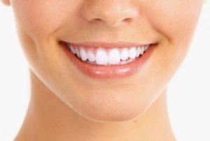 Профессиональные способы отбеливания зубов