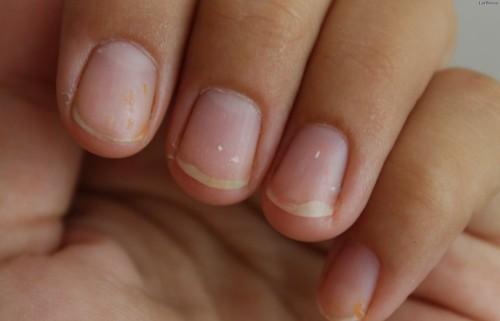 Чем быстро восстановить ногти после наращивания в домашних условиях 729
